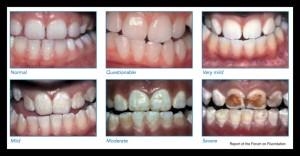Dental Fluorosis Fluoride